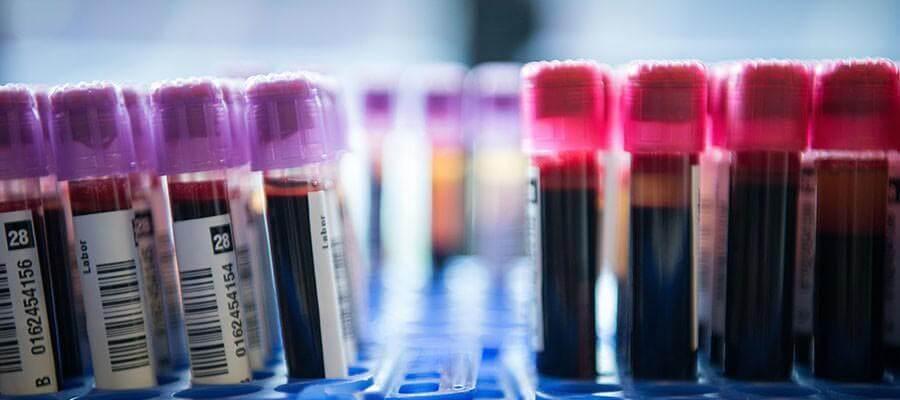 blood-cogulation-testing